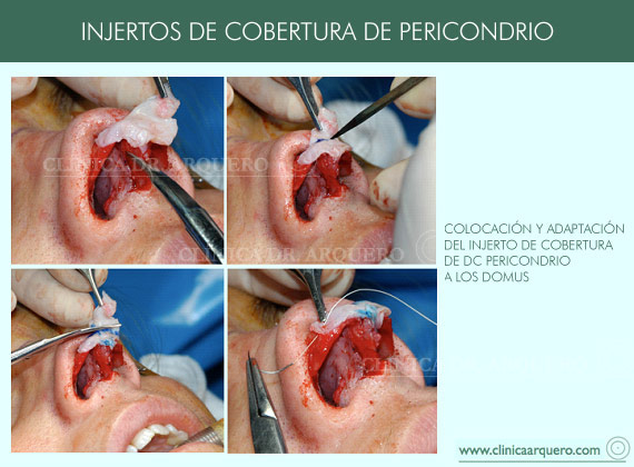 injertos_cobertura