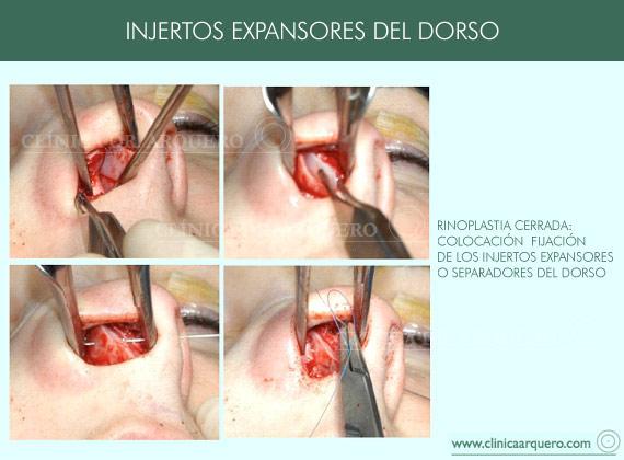 injertos_dorso1