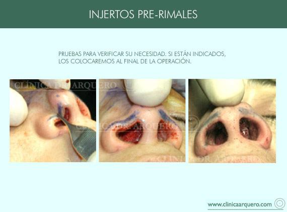 injertos_prerimales2