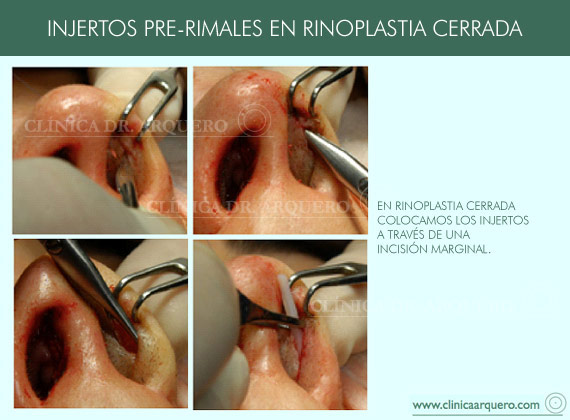 injertos_prerimales3