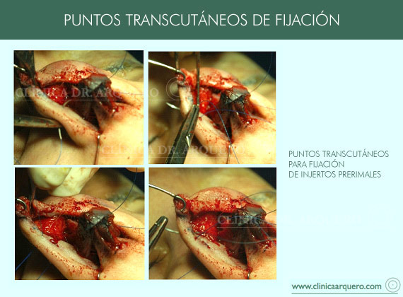 sutura_puntos_transcutaneos