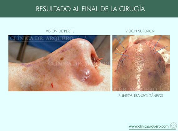 tecnicas_sutura