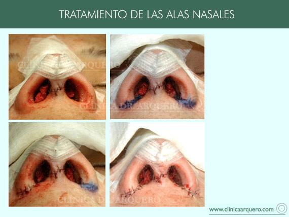 tratamientoalas1
