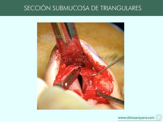 tratamientodorso1
