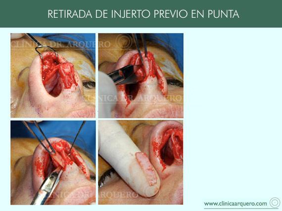 tratamientopunta7